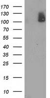 PDE2A Antibody - HEK293T cells were transfected with the pCMV6-ENTRY control (Left lane) or pCMV6-ENTRY PDE2A (Right lane) cDNA for 48 hrs and lysed. Equivalent amounts of cell lysates (5 ug per lane) were separated by SDS-PAGE and immunoblotted with anti-PDE2A.