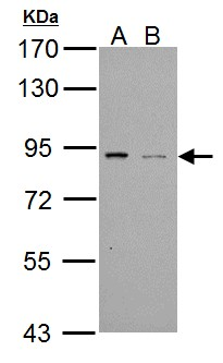 Sample (30 ug of whole cell lysate). A: NT2D1, B: PC-3. 7.5% SDS PAGE. PDE4B antibody diluted at 1:1000.