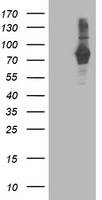 HEK293T cells were transfected with the pCMV6-ENTRY control (Left lane) or pCMV6-ENTRY PDE4B (Right lane) cDNA for 48 hrs and lysed. Equivalent amounts of cell lysates (5 ug per lane) were separated by SDS-PAGE and immunoblotted with anti-PDE4B.