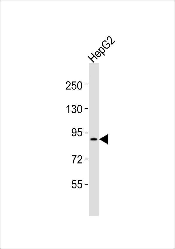 Anti-PDE4B/C/D Antibody at 1:1000 dilution + HepG2 whole cell lysates Lysates/proteins at 20 ug per lane. Secondary Goat Anti-Rabbit IgG, (H+L),Peroxidase conjugated at 1/10000 dilution Predicted band size : 83 kDa Blocking/Dilution buffer: 5% NFDM/TBST.