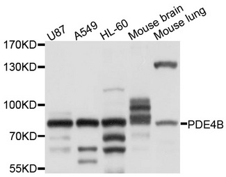 Western blot analysis of extracts of various cell lines, using PDE4B antibody at 1:1000 dilution. The secondary antibody used was an HRP Goat Anti-Rabbit IgG (H+L) at 1:10000 dilution. Lysates were loaded 25ug per lane and 3% nonfat dry milk in TBST was used for blocking. An ECL Kit was used for detection and the exposure time was 1s.