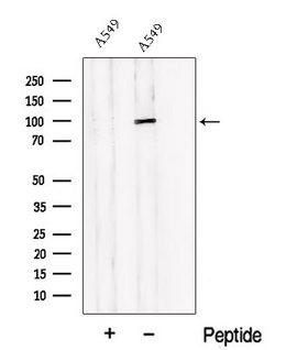 PDE6B / PDE6 Beta Antibody - Western blot analysis of extracts of A549 cells using PDE6B antibody. The lane on the left was treated with blocking peptide.