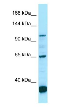 PDE6C antibody Western Blot of OVCAR-3.  This image was taken for the unconjugated form of this product. Other forms have not been tested.