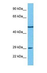 Western blot of PDE7B Antibody with human 786-0 Whole Cell lysate.  This image was taken for the unconjugated form of this product. Other forms have not been tested.