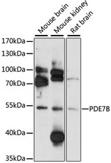 Western blot analysis of extracts of various cell lines, using PDE7B antibody at 1:1000 dilution. The secondary antibody used was an HRP Goat Anti-Rabbit IgG (H+L) at 1:10000 dilution. Lysates were loaded 25ug per lane and 3% nonfat dry milk in TBST was used for blocking. An ECL Kit was used for detection and the exposure time was 90s.