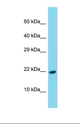 Western blot of Human Fetal Liver. PDGFC antibody dilution 1.0 ug/ml.  This image was taken for the unconjugated form of this product. Other forms have not been tested.