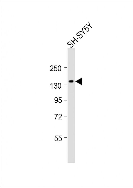 Anti-PDGFRB Antibody (C-term)at 1:2000 dilution + SH-SY5Y whole cell lysate Lysates/proteins at 20 ug per lane. Secondary Goat Anti-Rabbit IgG, (H+L), Peroxidase conjugated at 1:10000 dilution. Predicted band size: 124 kDa. Blocking/Dilution buffer: 5% NFDM/TBST.