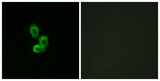 Immunofluorescence analysis of HepG2 cells, using PDGF Receptor beta Antibody. The picture on the right is blocked with the synthesized peptide.