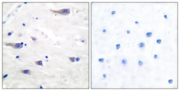 Immunohistochemistry analysis of paraffin-embedded human brain tissue, using PDGF Receptor beta Antibody. The picture on the right is blocked with the synthesized peptide.