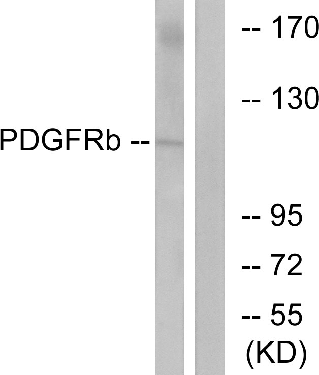 Western blot analysis of lysates from LOVO cells, using PDGF Receptor beta Antibody. The lane on the right is blocked with the synthesized peptide.