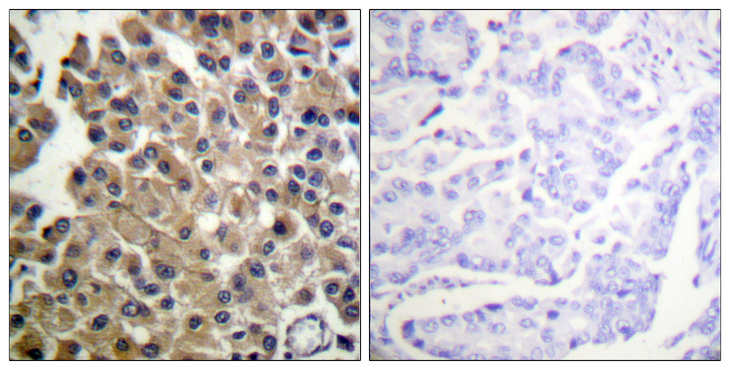 Immunohistochemistry analysis of paraffin-embedded human breast carcinoma tissue, using PDGFRB Antibody. The picture on the right is blocked with the synthesized peptide.
