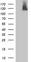 HEK293T cells were transfected with the pCMV6-ENTRY control (Left lane) or pCMV6-ENTRY PDGFRB (Right lane) cDNA for 48 hrs and lysed. Equivalent amounts of cell lysates (5 ug per lane) were separated by SDS-PAGE and immunoblotted with anti-PDGFRB.