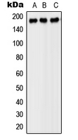 Western blot analysis of PDGFR beta expression in SP2/0 (A); H9C2 (B); PC12 (C) whole cell lysates.