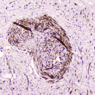 IHC analysis of PDGFRB using anti-PDGFRB antibody. PDGFRB was detected in paraffin-embedded section of human placenta tissue . Heat mediated antigen retrieval was performed in citrate buffer (pH6, epitope retrieval solution) for 20 mins. The tissue section was blocked with 10% goat serum. The tissue section was then incubated with 2?g/ml rabbit anti-PDGFRB Antibody overnight at 4?C. Biotinylated goat anti-rabbit IgG was used as secondary antibody and incubated for 30 minutes at 37?C. The tissue section was developed using Strepavidin-Biotin-Complex (SABC) with DAB as the chromogen.