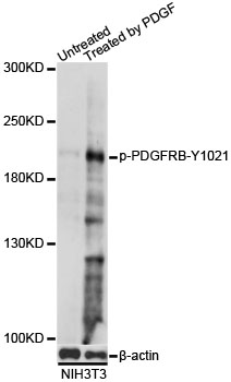 Western blot analysis of extracts of NIH/3T3 cells, using Phospho-PDGFRB-Y1021 antibody at 1:1000 dilution. NIH/3T3 cells were treated by PDGF (100ng/ml) for 30 minutes after serum-starvation overnight. The secondary antibody used was an HRP Goat Anti-Rabbit IgG (H+L) at 1:10000 dilution. Lysates were loaded 25ug per lane and 3% nonfat dry milk in TBST was used for blocking. Blocking buffer: 3% BSA.An ECL Kit was used for detection and the exposure time was 10s.