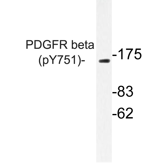 Western blot of p-PDGFR beta (Y751) pAb in extracts from NIH/3T3 PDGF cells.
