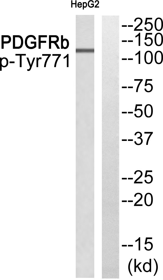 Western blot of extracts from HepG2 cells, using PDGFRb (Phospho-Tyr771) antibody.