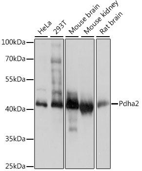 PDHA2 / PDH E1 Beta Antibody - Western blot analysis of extracts of various cell lines, using Pdha2 antibody at 1:1000 dilution. The secondary antibody used was an HRP Goat Anti-Rabbit IgG (H+L) at 1:10000 dilution. Lysates were loaded 25ug per lane and 3% nonfat dry milk in TBST was used for blocking. An ECL Kit was used for detection and the exposure time was 1s.