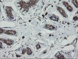 IHC of paraffin-embedded Human breast tissue using anti-PDIA3 mouse monoclonal antibody.