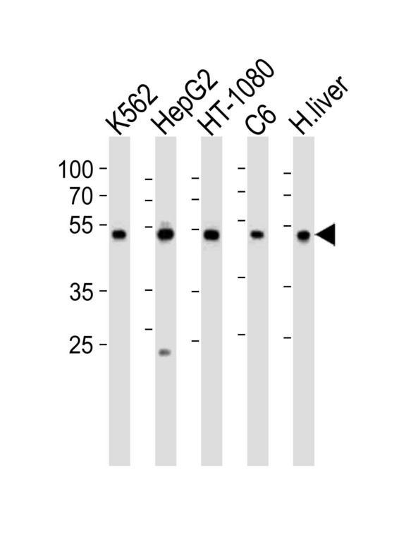 Western blot of lysates from K562, HepG2, HT-1080, rat C6 cell line and human liver tissue lysate (from left to right), using PDIA6 Antibody (Center K159). Antibody was diluted at 1:1000 at each lane. A goat anti-rabbit IgG H&L (HRP) at 1:10000 dilution was used as the secondary antibody. Lysates at 35ug per lane.