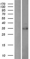 PDIK1L Protein - Western validation with an anti-DDK antibody * L: Control HEK293 lysate R: Over-expression lysate