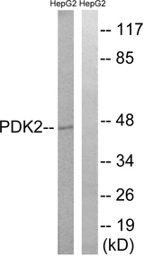 Western blot analysis of lysates from HepG2 cells, using PDK2 Antibody. The lane on the right is blocked with the synthesized peptide.
