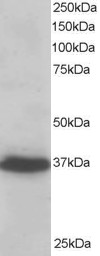 Antibody staining (0.2 ug/ml) of A431 lysate (RIPA buffer, 35 ug total protein per lane). Primary incubated for 1 hour. Detected by western blot using chemiluminescence.