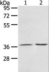 Western blot analysis of Mouse stomach tissue and A431 cell, using PDLIM4 Polyclonal Antibody at dilution of 1:800.