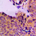 Immunohistochemical analysis of PDPK1 (pS241) staining in human breast cancer formalin fixed paraffin embedded tissue section. The section was pre-treated using heat mediated antigen retrieval with sodium citrate buffer (pH 6.0). The section was then incubated with the antibody at room temperature and detected using an HRP conjugated compact polymer system. DAB was used as the chromogen. The section was then counterstained with hematoxylin and mounted with DPX.