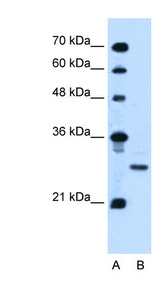 PDPN / Podoplanin antibody LS-C40483 Western blot of Jurkat lysate.  This image was taken for the unconjugated form of this product. Other forms have not been tested.