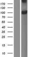 PDPR Protein - Western validation with an anti-DDK antibody * L: Control HEK293 lysate R: Over-expression lysate