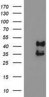 PDSS2 / DLP1 Antibody - HEK293T cells were transfected with the pCMV6-ENTRY control (Left lane) or pCMV6-ENTRY PDSS2 (Right lane) cDNA for 48 hrs and lysed. Equivalent amounts of cell lysates (5 ug per lane) were separated by SDS-PAGE and immunoblotted with anti-PDSS2.