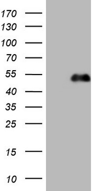 HEK293T cells were transfected with the pCMV6-ENTRY control (Left lane) or pCMV6-ENTRY PDX1 (Right lane) cDNA for 48 hrs and lysed. Equivalent amounts of cell lysates (5 ug per lane) were separated by SDS-PAGE and immunoblotted with anti-PDX1.