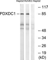 PDXDC1 Antibody - Western blot analysis of lysates from HepG2 and HUVEC cells, using PDXDC1 Antibody. The lane on the right is blocked with the synthesized peptide.