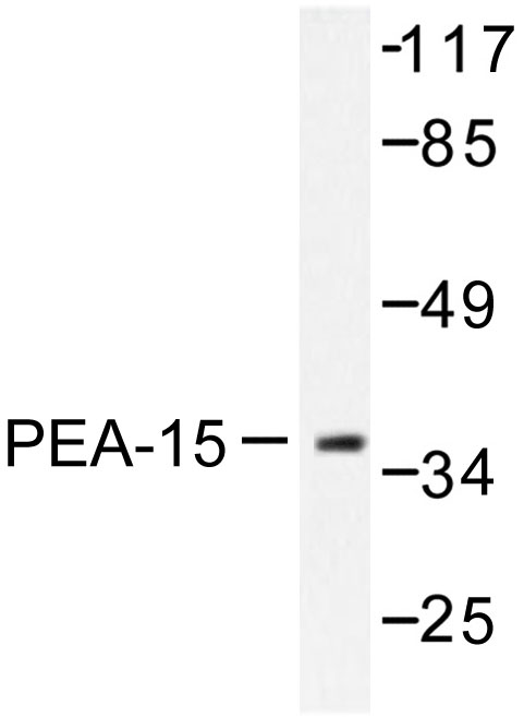 Western blot of PEA-15 (D110) pAb in extracts from Jurkat cells treated with PMA 125ng/ml 30'.