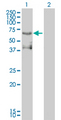 Western Blot analysis of ETV4 expression in transfected 293T cell line by ETV4 monoclonal antibody (M01), clone 3G9-1B9.Lane 1: ETV4 transfected lysate(54 KDa).Lane 2: Non-transfected lysate.