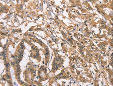 PEBP1 / RKIP Antibody - Immunohistochemistry of paraffin-embedded Human colon cancer using PEBP1 Polyclonal Antibody at dilution of 1:40.