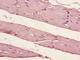 Immunohistochemistry of paraffin-embedded human skeletal muscle tissue using PER1 Antibody at dilution of 1:100