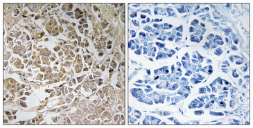 PEX11G Antibody - Immunohistochemistry analysis of paraffin-embedded human pancreas, using PEX11C Antibody. The picture on the right is blocked with the synthesized peptide.