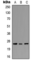 PEX11G Antibody - Western blot analysis of PEX11G expression in MCF7 (A); NS-1 (B); PC12 (C) whole cell lysates.