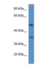 PEX2 antibody Western blot of Mouse Spleen lysate. Antibody concentration 1 ug/ml. This image was taken for the unconjugated form of this product. Other forms have not been tested.