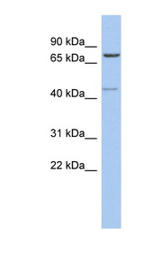PEX5 antibody LS-C111800 Western blot of COLO205 cell lysate.  This image was taken for the unconjugated form of this product. Other forms have not been tested.