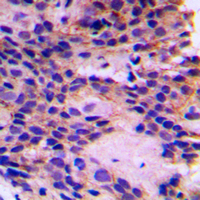 PEX7 Antibody - Immunohistochemical analysis of PEX7 staining in human breast cancer formalin fixed paraffin embedded tissue section. The section was pre-treated using heat mediated antigen retrieval with sodium citrate buffer (pH 6.0). The section was then incubated with the antibody at room temperature and detected using an HRP conjugated compact polymer system. DAB was used as the chromogen. The section was then counterstained with hematoxylin and mounted with DPX.