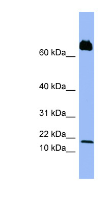PF4V1 antibody LS-C107554 Western blot of PANC1 cell lysate.  This image was taken for the unconjugated form of this product. Other forms have not been tested.