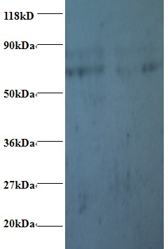 Western blot of Prefoldin subunit 5 antibody at 2 ug/ml. Lane 1: EC109whole cell lysate. Lane 2: 293T whole cell lysate. Secondary: Goat polyclonal to Rabbit IgG at 1:15000 dilution. Predicted band size: 17 kDa. Observed band size: 70 kDa Additional bands at: 80 kDa. We are unsure as to the identity of these extra band.  This image was taken for the unconjugated form of this product. Other forms have not been tested.