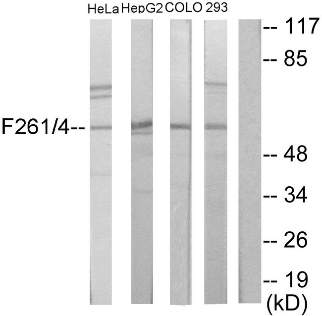 PFKFB1+4 Antibody - Western blot analysis of lysates from HeLa, HepG2, COLO205, and 293 cells, using PFKFB1/4 Antibody. The lane on the right is blocked with the synthesized peptide.