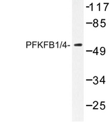PFKFB1+4 Antibody - Western blot of PFKFB1/4 (E349) pAb in extracts from HeLa cells.