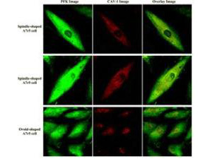PFKM / PFK-1 Antibody - #Confocal microscopy images using the anti-F6PK MAGP-2 antibody shows specific staining. Cultures of A7r5 VSM cells (rat aorta) were labeled with anti-F6PK (PFK) at 1:200 and anti-caveolin (CAV)-1. Images from labeled A7r5 cells were acquired separately for PFK fluorescence (green) and CAV-1 fluorescence (red) from each cell.