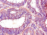 Immunohistochemistry of paraffin-embedded human endometrial cancer using CSB-PA017823LA01HU at dilution of 1:100