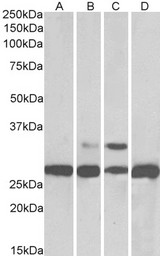 PGAM1/ 2/4 Antibody - Goat Anti-PGAM1 / PGAM2 / PGAM4 Antibody (0.05µg/ml) staining of Human (A), Mouse (B), Rat (C) and Pig Liver (D) lysates (35µg protein in RIPA buffer). Primary incubation was 1 hour. Detected by chemiluminescencence.